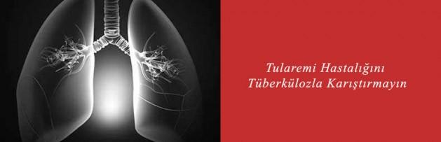 Tularemi Hastalığını Tüberkülozla Karıştırmayın