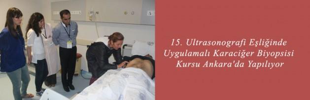 15 Ultrasonografi Eşliğinde Uygulamalı Karaciğer Biyopsisi Kursu Ankara'da Yapılıyor