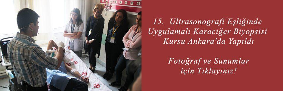 15 Ultrasonografi Eşliğinde Uygulamalı Karaciğer Biyopsisi Kursu Ankara'da Yapıldı