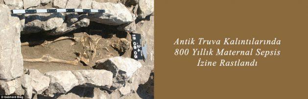 Antik Truva Kalıntılarında 800 Yıllık Maternal Sepsis İzine Rastlandı