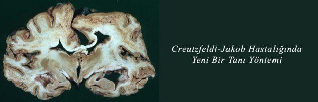 Creutzfeldt-Jakob Hastalığında Yeni Bir Tanı Yöntemi